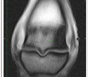 MRI - Bone Edema